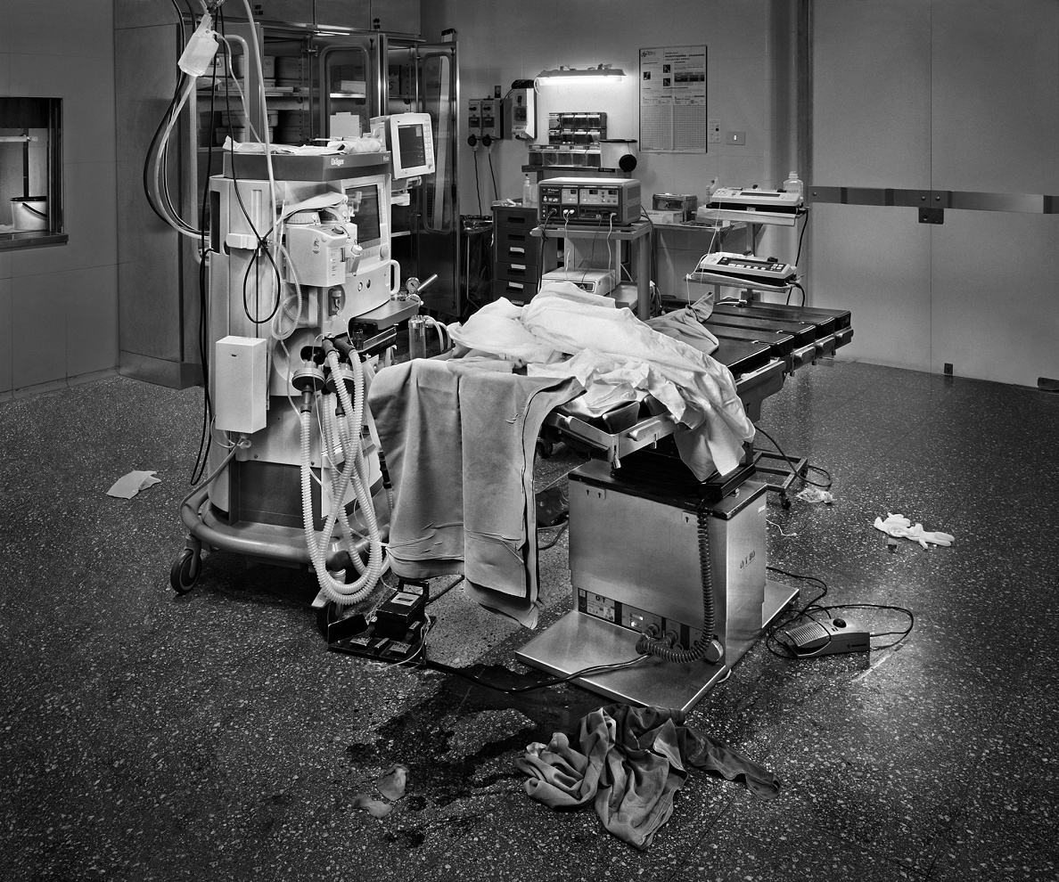 Hybris #4 Ematoma subdurale cronico bilaterale