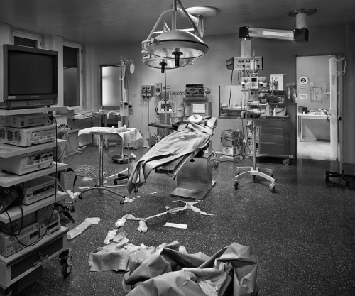 Hybris #3 Prostatectomia in videolaparoscopia